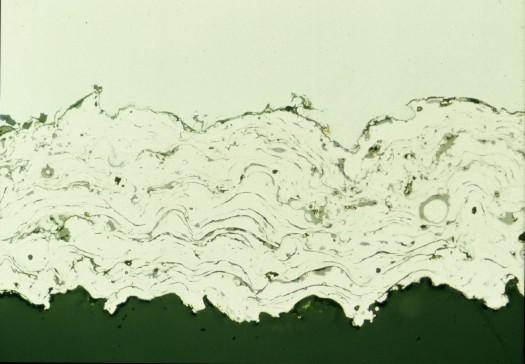 Metallographic micrograph of NiCr plasma spray coating